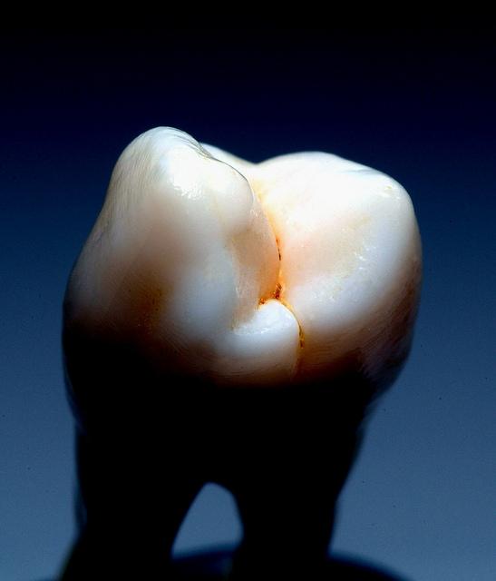 Makellose Optik eines Zahns